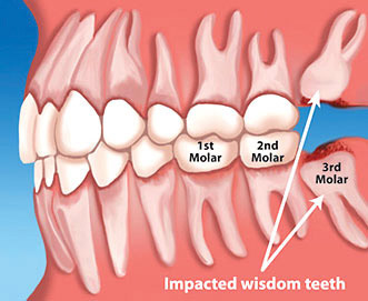 Dental Extractions & Wisdom Teeth in Huntington Beach