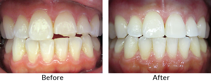 Before & After - Jason - Dental Bonding